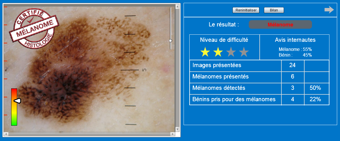 Quiz Mélanomes Anapix Médical